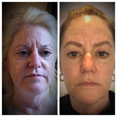 Wilmington facial rejuvenation