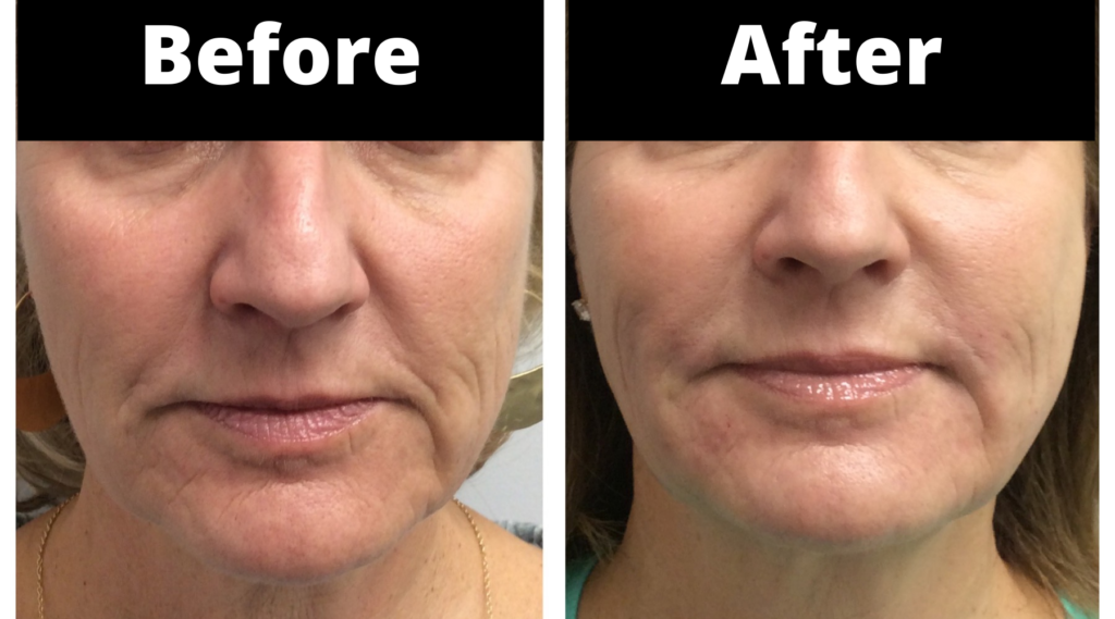 before and after pdo thread facelift